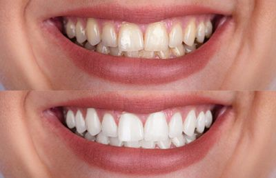 teeth-whitening-img-400x258